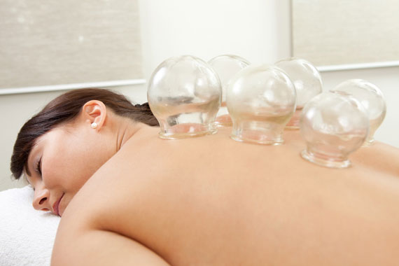 Cupping Therapy in progress. Available at Peel Acupuncture.